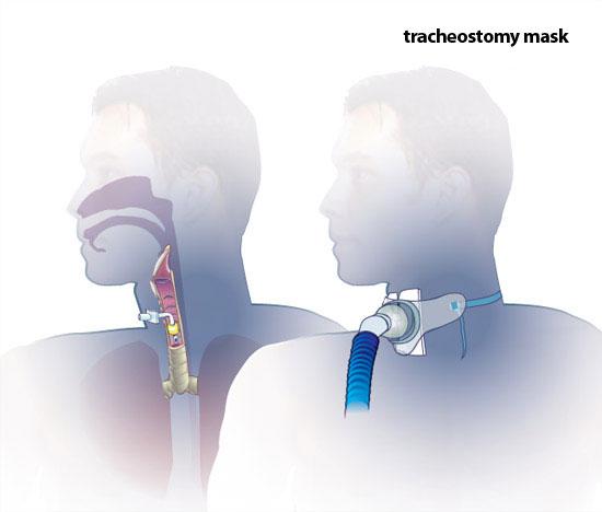 Tracheostomy mask  sc 1 st  ATI Testing & Oxygen Therapy