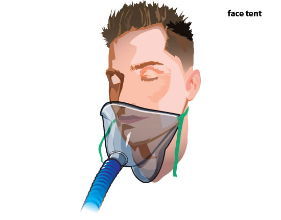 Face tent  sc 1 st  ATI Testing & Oxygen Therapy